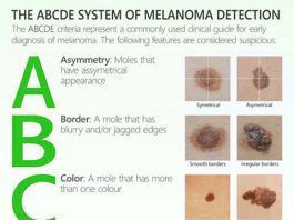 How to detect melanoma and skin cancer. Infographic.