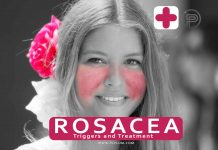 rosacea-treatment-triggers-drugs-redness-flush-healing-medicine