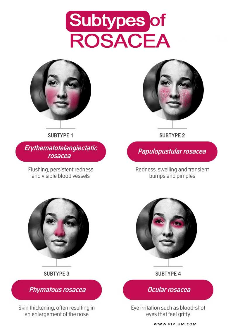 Subtypes-of-Rosacea-women-flush-face-redness-acne